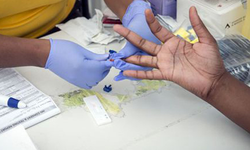 Issues Of HIV Prevention In Africa